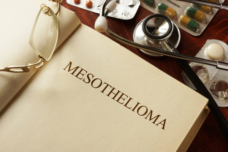 5 Tips for you to find the best mesothelioma lawyer ( Part 1)